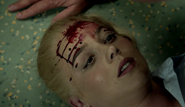 Katherine with blood on forehead